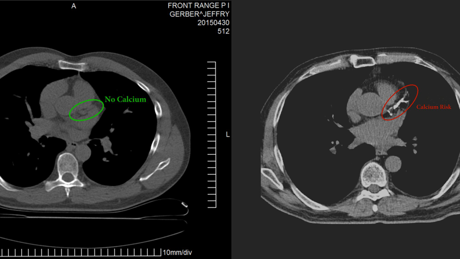 lchf 15 years  coronary artery calcium score zero  - jeffry gerber  md